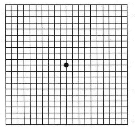 591fc686d8 Test de campo visual con rejilla de Amsler | Sanluis Optico